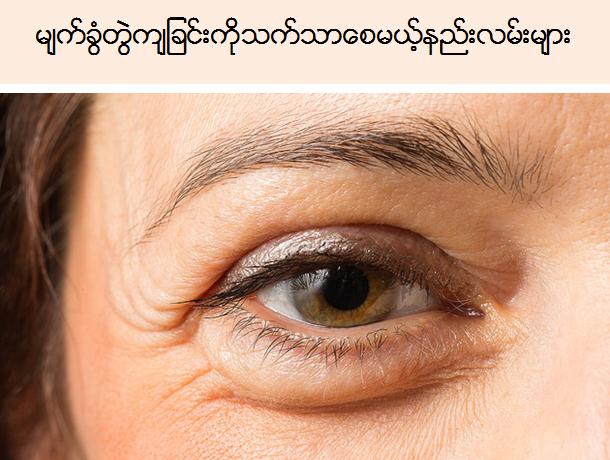 မ်က္ခြံတြဲက်ျခင္းကိုသက္သာေစမယ့္နည္းလမ္းမ်ား